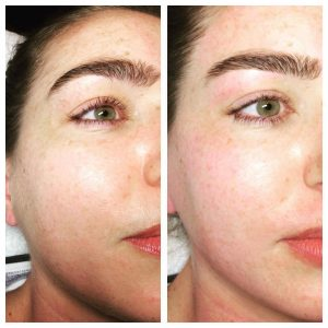 Eyebrow and facial threading